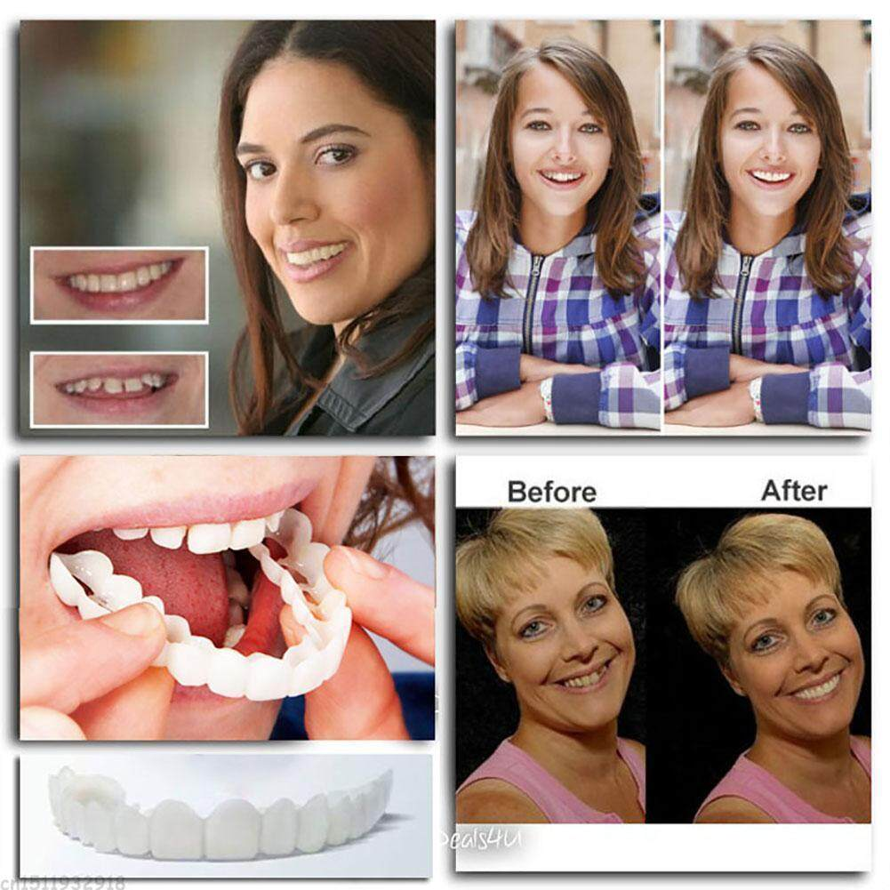 Ryt Snap On Smile Teeth Top Veneer Instant Smile Comfort Teeth Denture Fit Flex By Ryder Yi Trading.