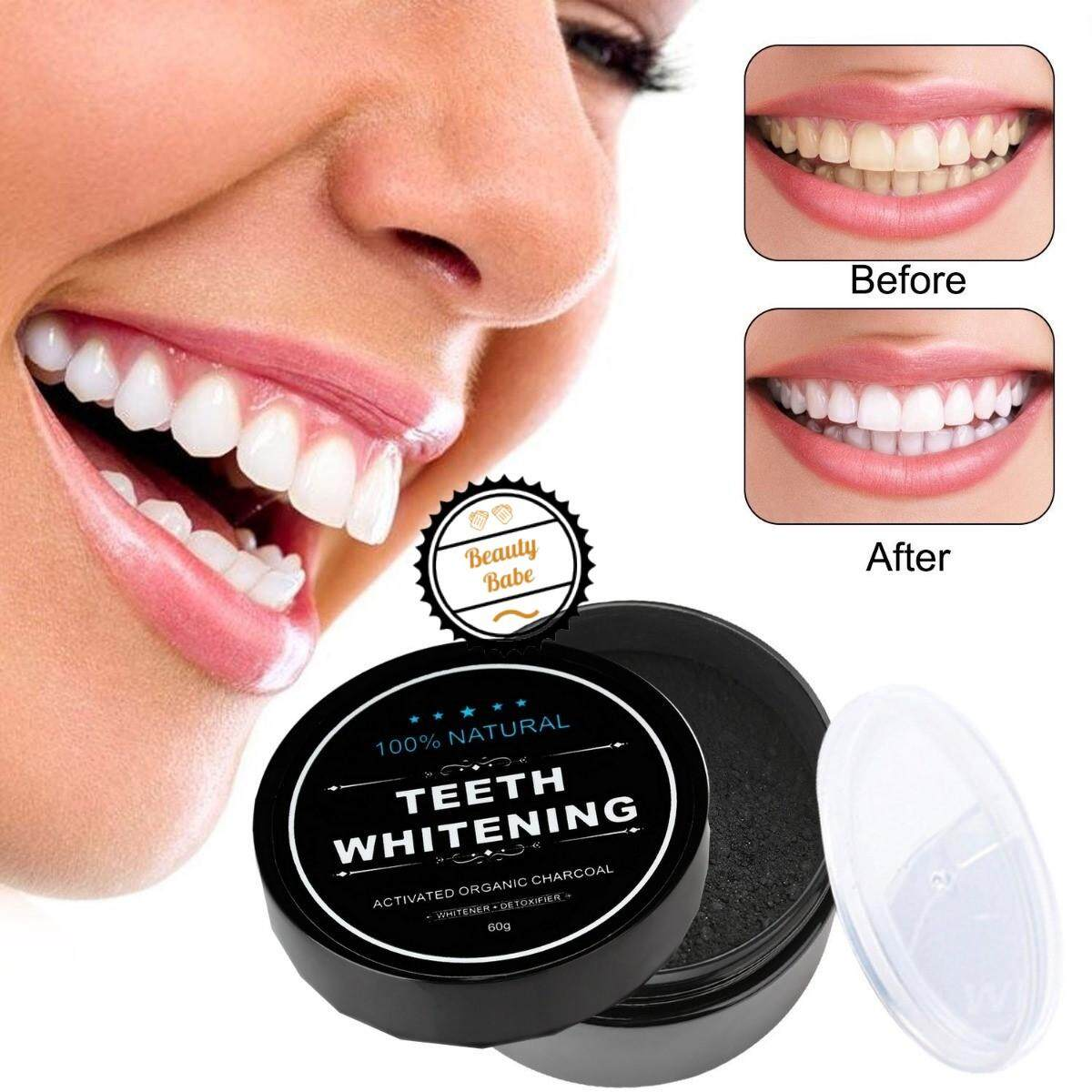 Tooth Teeth Whitening 30g/jar Effective Professional Natural Activated Charcoal Powder [ready Stock] By Beauty Babe.