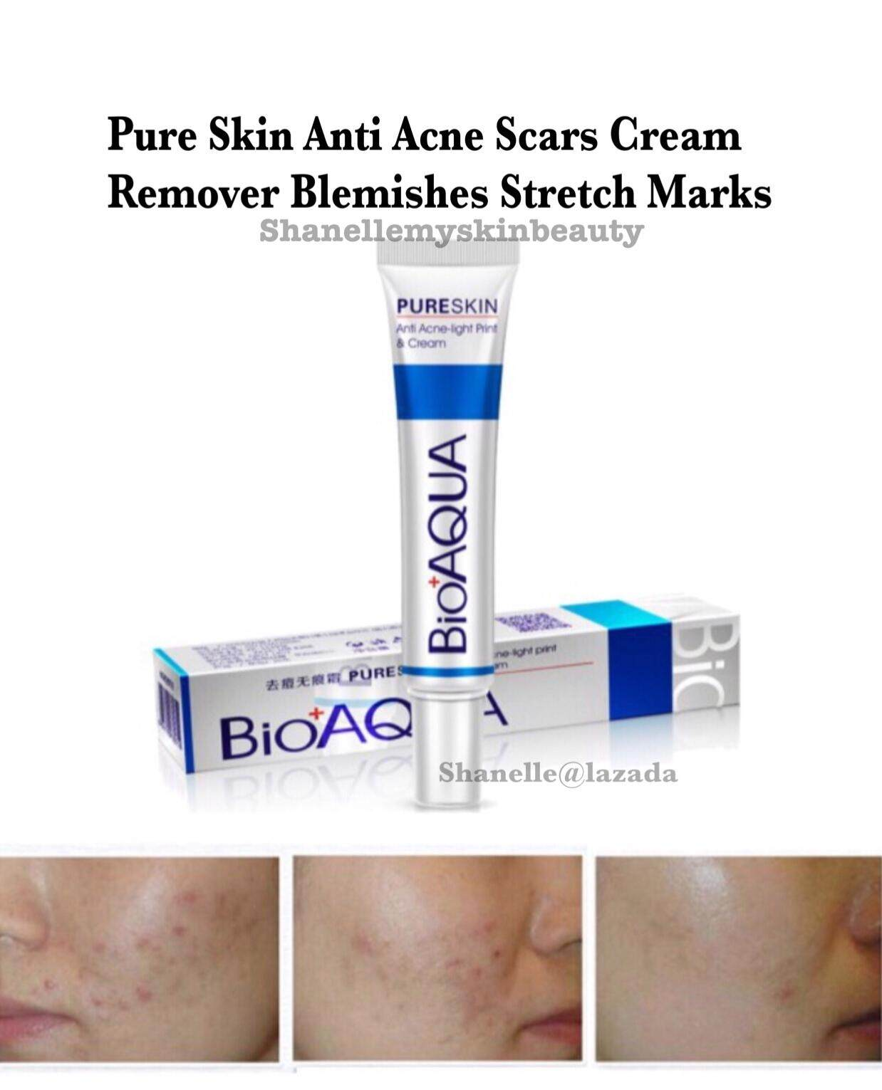 Pure Skin Anti Acne Scars Remover Scars Cream Blemishes Stretch Marks Acne Removal Shrink Pores Blackheads Repairing Damages Skin Oil Control Rejuvenation Cream 30g By Shanelle.