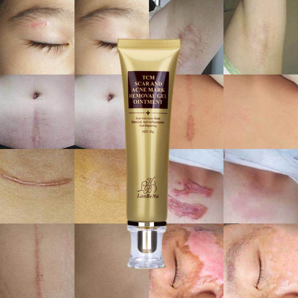 Panadol Actifast 500mg 20s Malaysia Lanbena Acne Scar Cream Ginseng Essence Anti Remover Face Care Makeup Spots Stretch Marks
