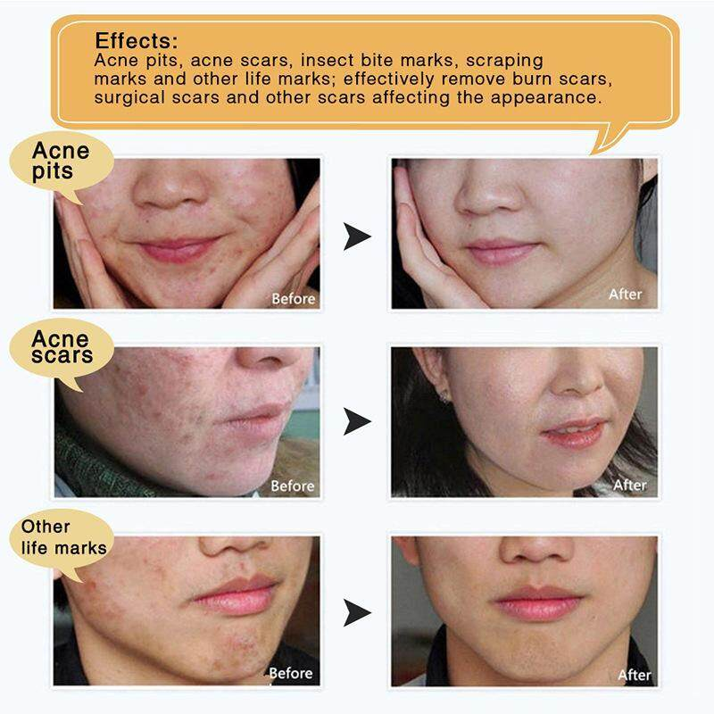 LANBENA Cream Acne Gel Repair Acne Fade Surgery Scar (30g)