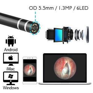 vsaten ear otoscope 3.jpg